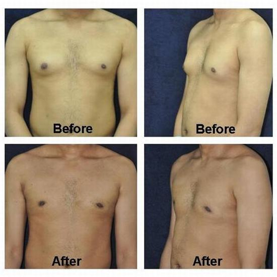 Male breast reduction pics