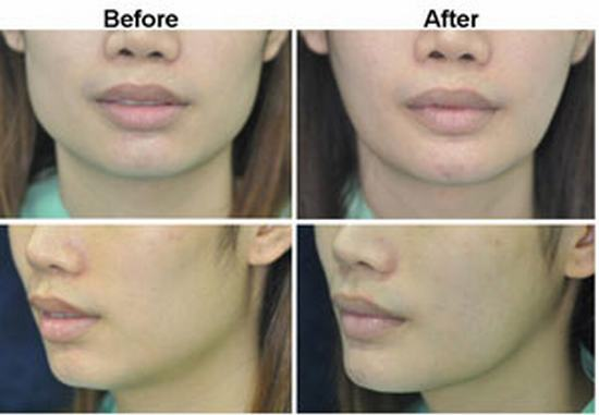 Jaw Reduction By Surgery - Plastic Surgery Thailand -2315