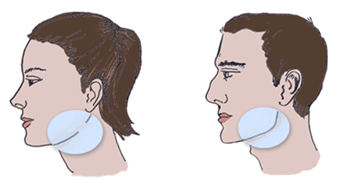 jaw reduction 2.PNG (489×267)