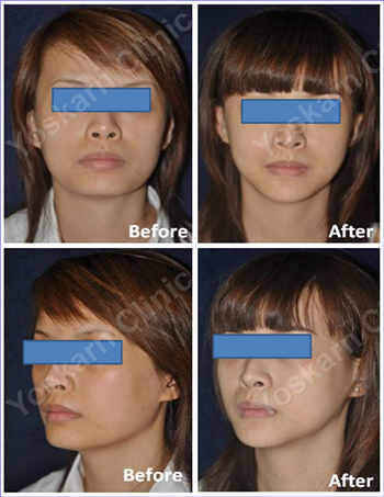 jaw reduction 3.png (836×1083)